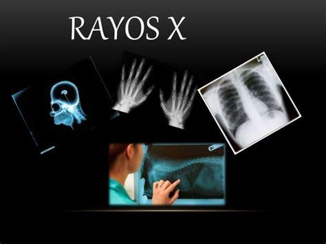 imagenes medicas rayos x rayos x