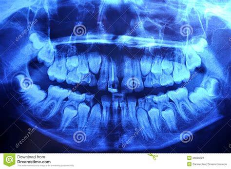 year  panoramic dental  ray stock image image