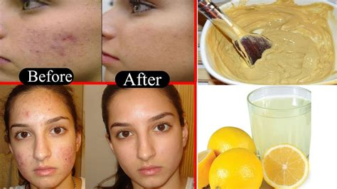 how to get rid of light spots on how to get rid of light brown spots on