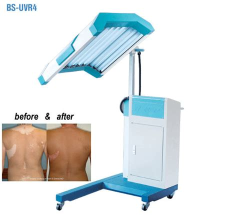ultraviolet light therapy machine phototherapy treatment uvb light therapy machine uvb