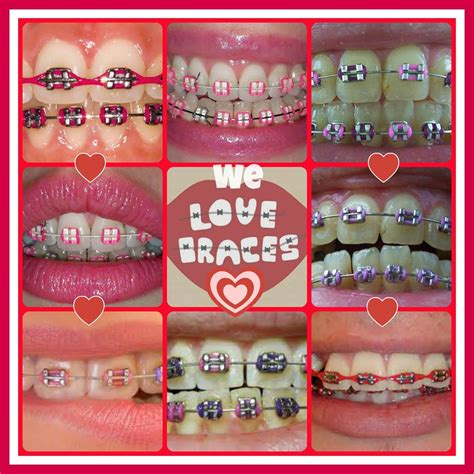 braces colors for teeth the gallery for gt pretty braces colors combinations