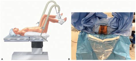 lithotomy draping surgical management of hemorrhoids basicmedical key