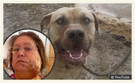 pitbull attack grandmother viciously attacked by family pit bull during challenge