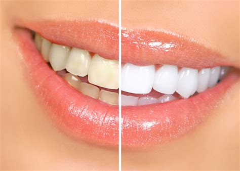 whiten  teeth naturally    effective home
