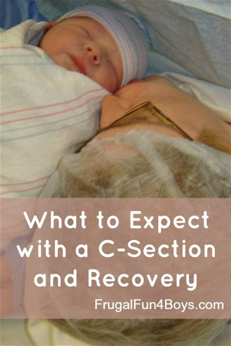 what to expect during a c section and recovery frugal