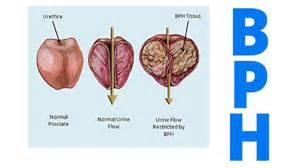 Signs amp symptoms benign prostatic hyperplasia dr david samadi
