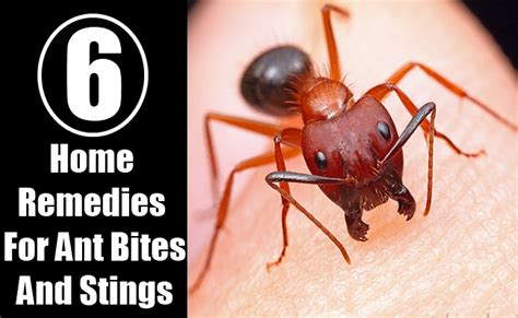 6 home remedies for ant bites and stings diy home