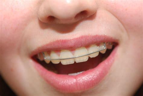 Harga Clear Braces jenis jenis behel gigi braces dan kegunaannya kaskus