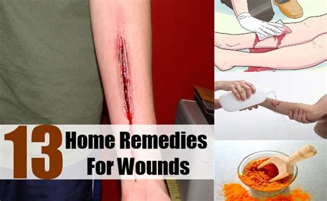 13 different home remedies for wounds treatments