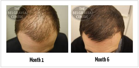 male hair loss pattern due to stress male pattern baldness newhairstylesformen2014 com