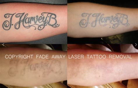 fade away tattoo removal cream benchmark fade away laser removal duluth
