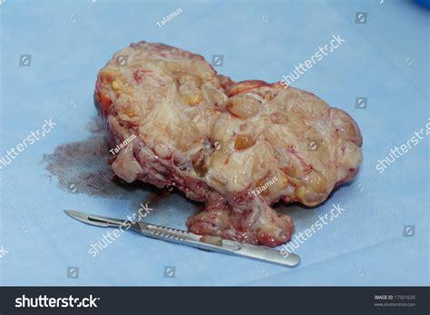 benign tumor on benign tumor fibroadenoma on section after operation stock photo 17501635