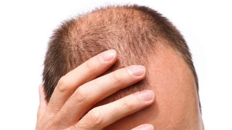 what percentage of men lose hair foods that prevent hair loss how to get the 7 essential
