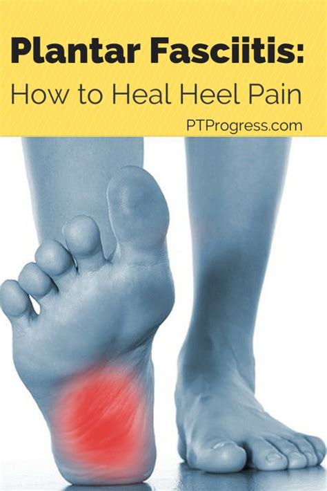How To Cure Planters Fasciitis by Plantar Fasciitis Treatment How To Heal Heel