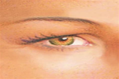 Mcgowans Droopy Eye Problem by Botox Eye Droop Drops Hairsstyles Co