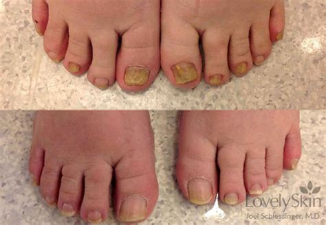 toenail fungus before amp after photos skin specialists