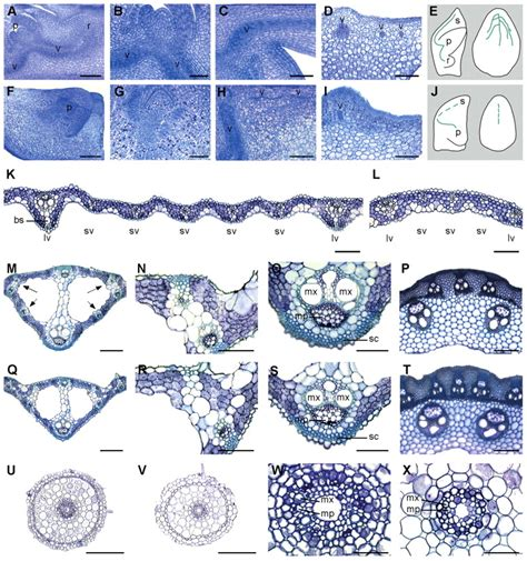 pattern formation in mathematical biology the radicleless1 gene is required for vascular pattern