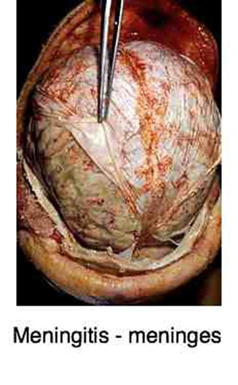 meningitis    fever stiff neck  headache