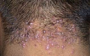 does hair bumps hurt pimples on scalp causes small painful itchy get rid