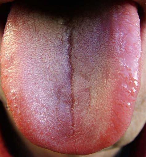 healthy tongue color maciocia may 2012