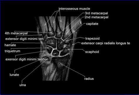 cross sectional anatomy study guide mri wrist coronal anatomy wrist tendon and ligaments