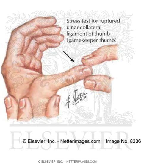 keepers thumb gamekeeper thumb