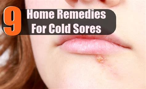 how do you treat a cold sore treat cold with food