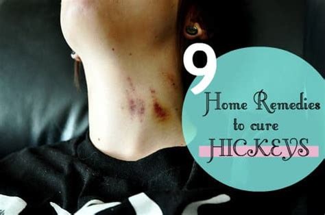 9 effective home remedies to cure hickeys home remedies