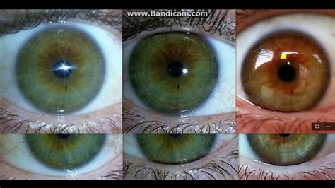 S Eye Color Changing After Detoxing by Iridology Lesson I Changed My From Brown To Blue