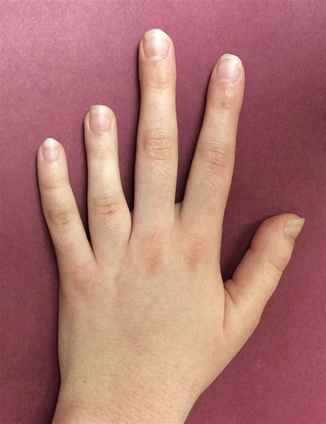 Thumb And Fingers patient presenting with a 4th metacarpal