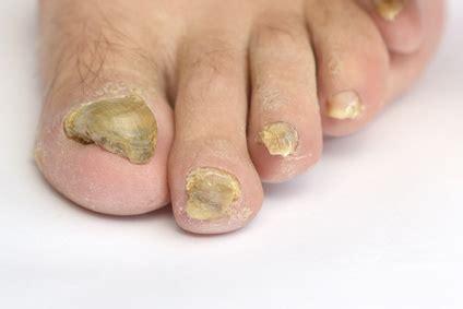 Fußnägel Lackieren Bei Nagelpilz by Verdickte Zehenn 228 Gel Ursachen Behandlung Vorbeugung