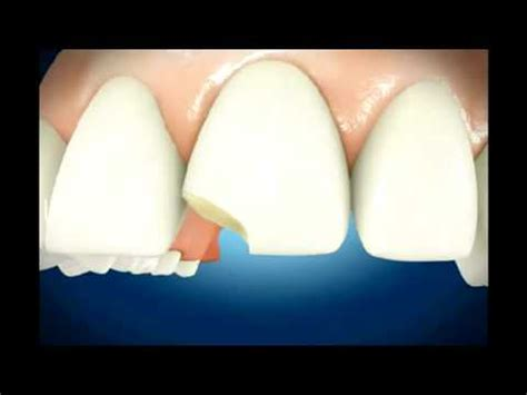 How Do You Fix A Chip In A Bathtub by Broken Teeth Repair Dental Conduit Uk