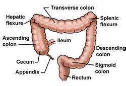 removal of colon section http www yoursurgery com