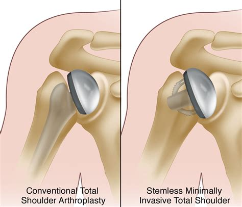 replacement shoulder information michigan orthopedics richard bartholomew do minimally