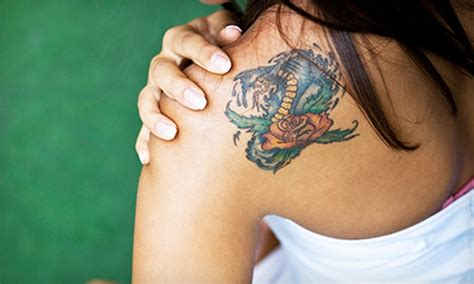 tattoo ink expiration tattoo removal laser my tat groupon