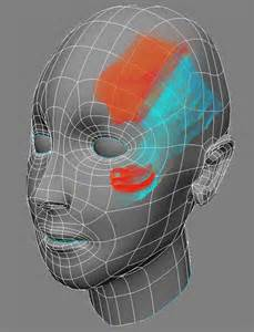 Animated diagram of head with colors mapping progression of migraine