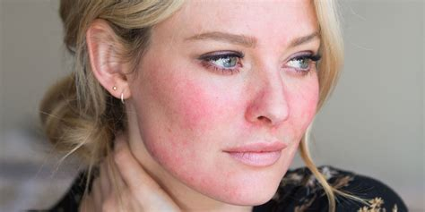 Home Decorating Ideas Pinterest by What Is Rosacea Could You Be Suffering Without Even Knowing