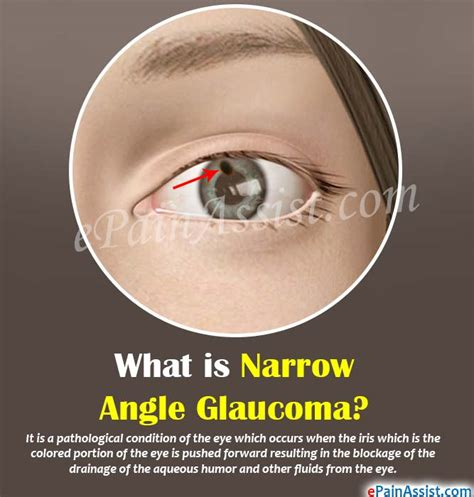 light in peripheral vision mayo clinic what causes narrow angles in the eye decorativestyle org