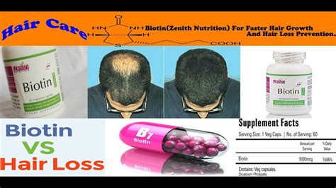 salicylic acid shoo for african american hair does hair loss shoo work how biotin zenith nutrition work