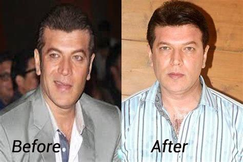 akshay khanna hair transplate why are there no bald actors in bollywood quora