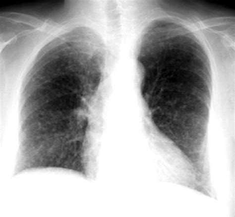 Multiplek Lung lung fields
