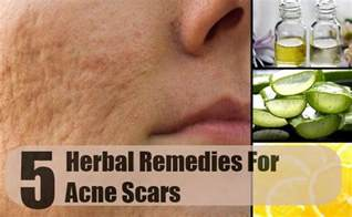 home remedies for acne scars best herbal remedies for acne scars how to treat acne