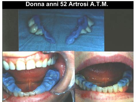 sedute di tens trattamento artrosi a t m con finalizzazione protesica