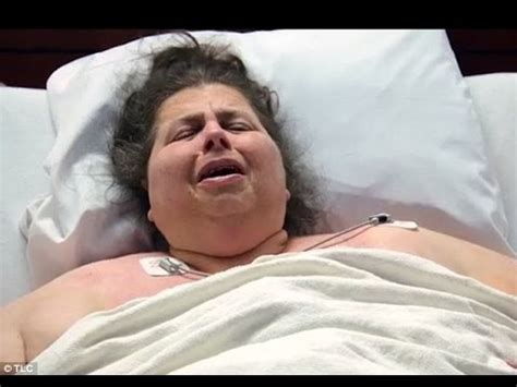 how do morbidly obese people go to the bathroom morbidly obese woman willingly puts her life at risk after