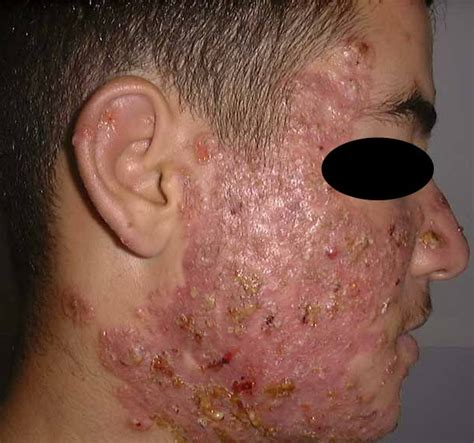 pustules pestilence and tudor treatments and ailments of henry viii books pustular acne pictures photos