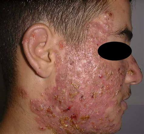 pustules pestilence and tudor treatments and ailments of henry viii books pustular acne pictures photos