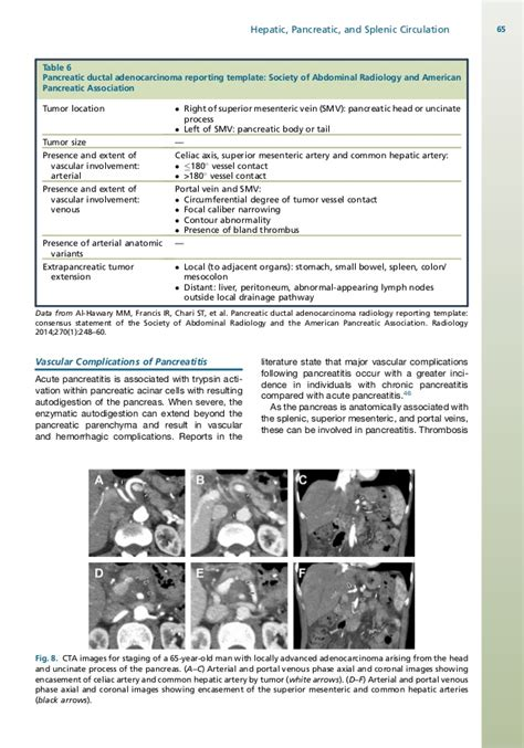 ct abdomen report template pancreatitis computed tomography angiography of the hepatic pancreatic
