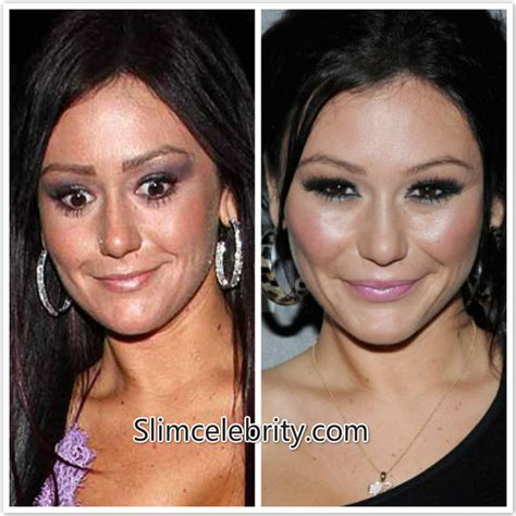 jenni jwoww before and after plastic surgery breast jenni jwoww farley plastic surgery before and after