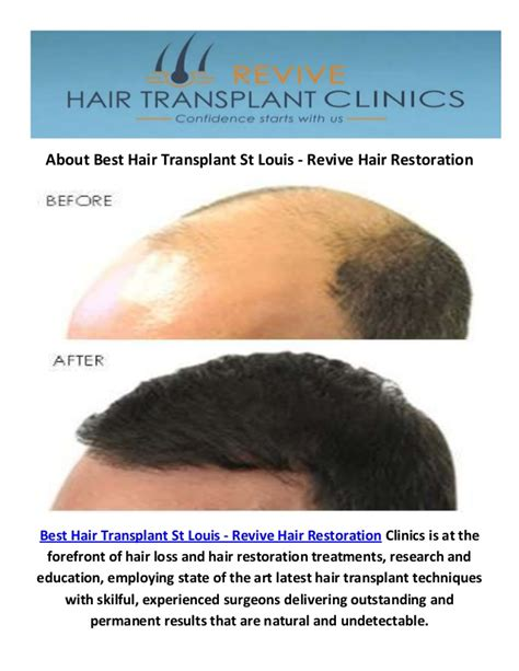 where is the hair show st louis mo 2015 best hair transplant in st louis mo