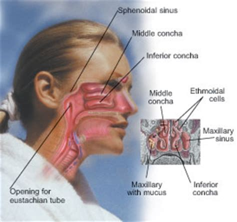 sinus diagram family health family medicine sinusitis more